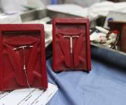 IUDs are displayed on a table at the counseling unit in Yusuf Dantsoho memorial hospital in Nigeria's northern city of Kaduna, November  13, 2012.